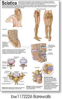 medical chart showing the signs and symptoms of sciatica by stocktrek  images, art print