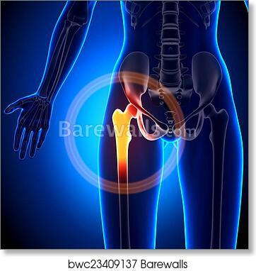 Art print of female hip joint anatomy bones barewalls posters art print of female hip joint anatomy bones ccuart Choice Image