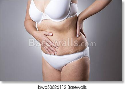 Art Print Of Woman In A White Bra And White Panties With Abdominal Pain On A Gray Background