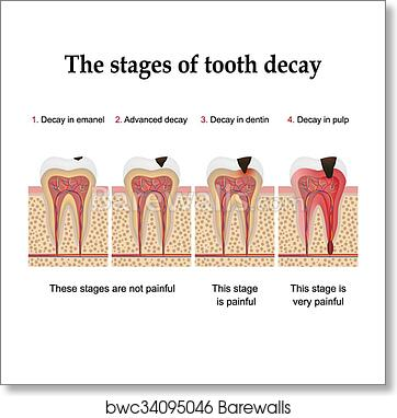 Tooth decay formation art print poster