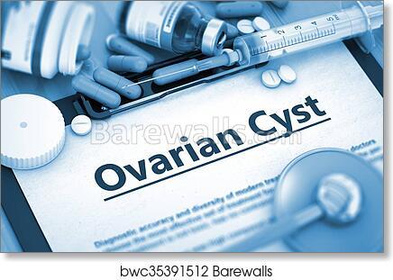 Ovarian Cyst Diagnosis  Medical Concept  art print poster