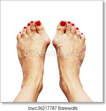 Valgus Deformity Of Legs Due Of The Cross Flatfoot Hallux Valgus