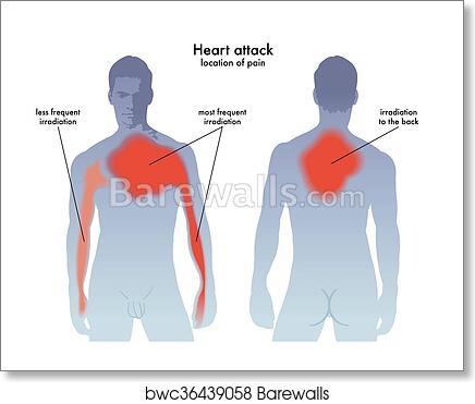 Art Print of Heart attack pain location | Barewalls Posters & Prints ...