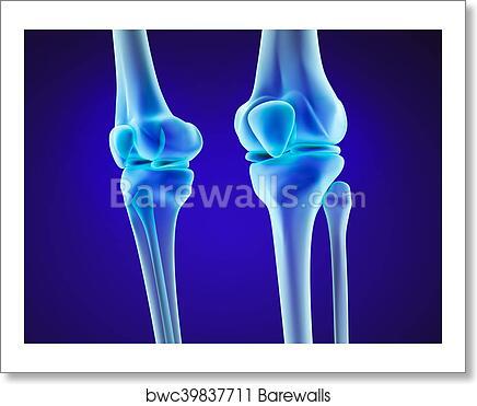 Art print of knee anatomy xray view medically accurate 3d art print of knee anatomy xray view medically accurate 3d illustration ccuart Choice Image