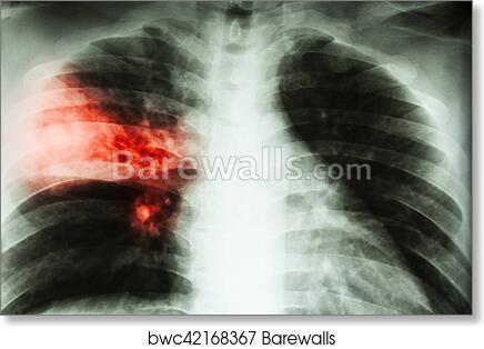 art print of lobar pneumonia film chest x ray show alveolar