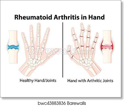 Art Print Of Diagram Showing Rheumatoid Arthritis In Hand