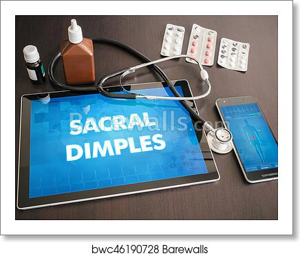 Sacral dimples (congenital disorder) diagnosis medical concept on tablet  screen with stethoscope art print poster