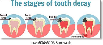 The stages of tooth decay infographic  Dental toothache symbol art print  poster