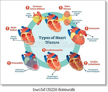 Types of heart disease collection, vector illustration ...