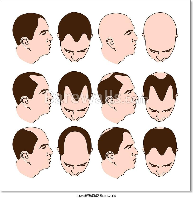 Receding 🌱 can you hairline a reverse Aloe Vera: