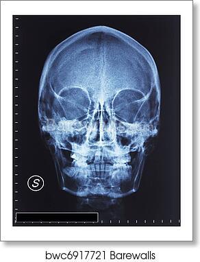 Art Print of Skull xray   Barewalls Posters & Prints   bwc6917721