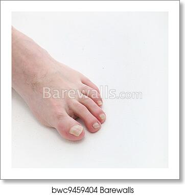 Psoriasis of the toenails with text space art print poster