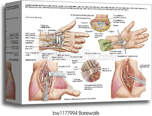 Canvas Print of Medical illustration showing carpal tunnel syndrome ...