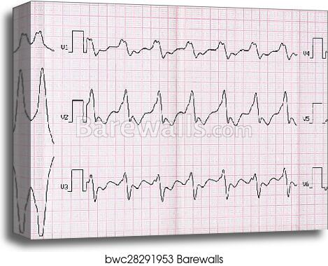 ECG with paroxysm correct form of atrial flutter with atrioventricular  conduction 2: 1 canvas print