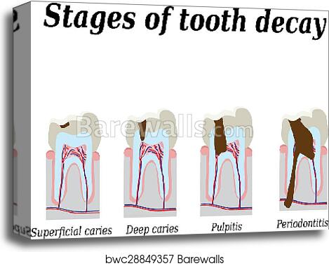 Stages of development of dental caries  Vector illustration on isolated  background canvas print