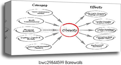 Obesity Causes And Effects Canvas Print Barewalls Posters Prints Bwc29844599