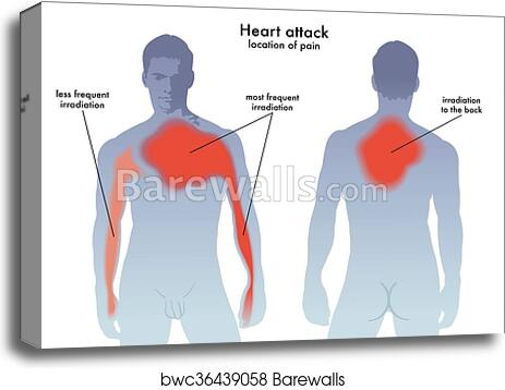 Canvas Print of Heart attack pain location | Barewalls Posters ...