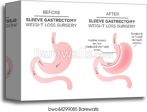 Stomach Staple Bariatric Surgery Resulting In 1 4 Of The Stomach