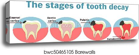 The stages of tooth decay infographic  Dental toothache symbol canvas print