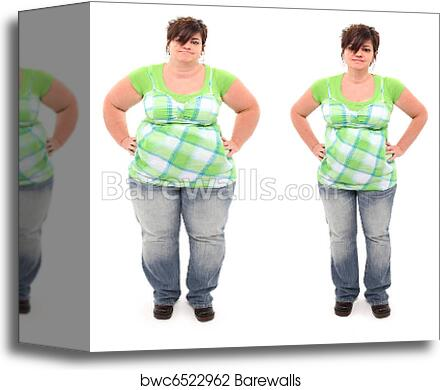 Before And After Overweight 45 Year Old Woman Canvas Print Barewalls Posters Prints Bwc6522962