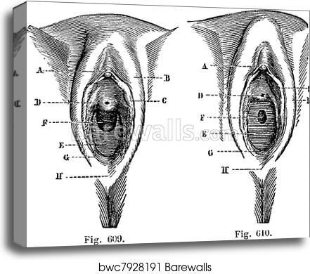 Black vulva pics